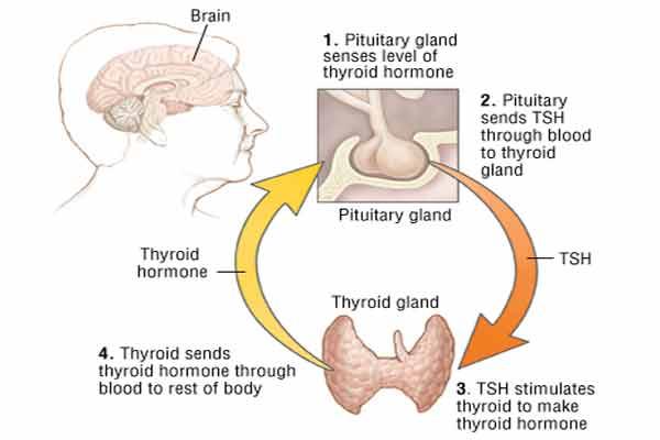 hypothyroidism gland